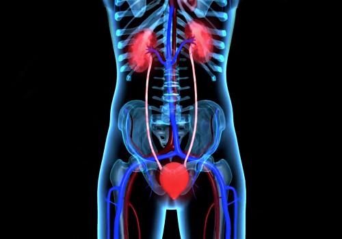 Інфекція нирок - пієлонефрит