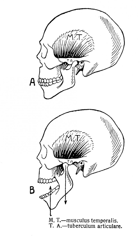 Нижнечелюстной сустав — articulatio mandibularis