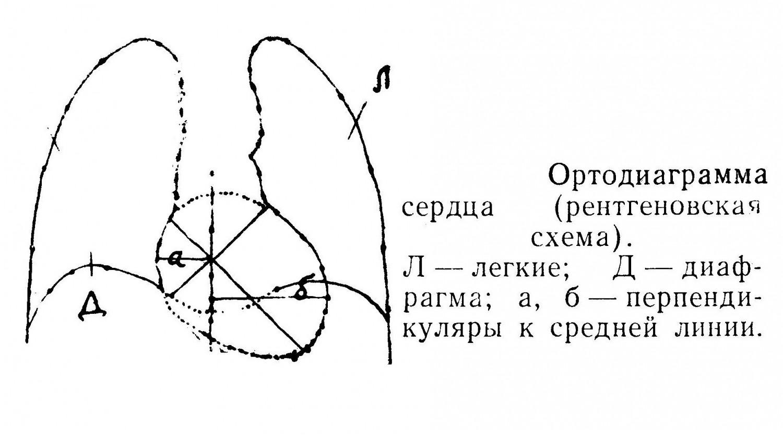Ортодиаграмма сердца (рентгеновская схема).