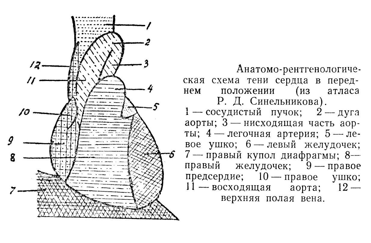 Анатомо-рентгенологическая схема тени сердца в переднем положении