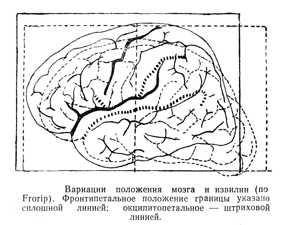 Вариации расположения мозга и извилин
