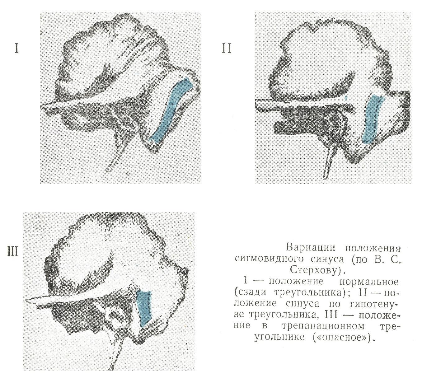 Вариации положения сигмовидного синуса