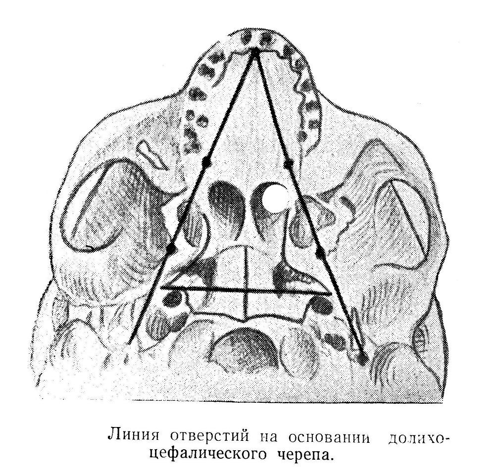 Линия отверстий на основании долихоцефалического черепа.