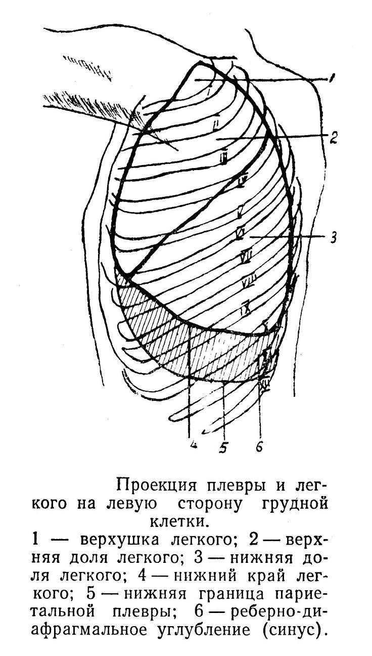 Проекция плевры и легкого на левую сторону грудной клетки.