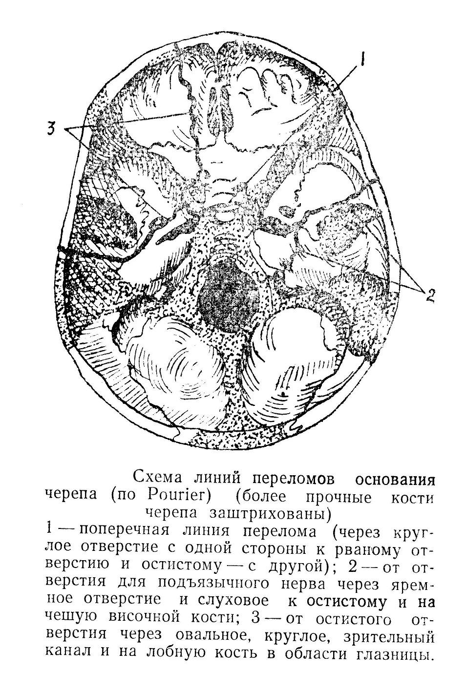 Схема линий переломов основания черепа (по Pourier)