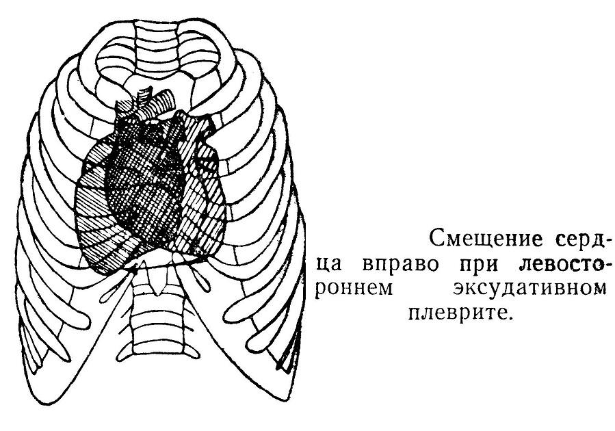 Смещение сердца вправо при левостороннем эксудативном плеврите.