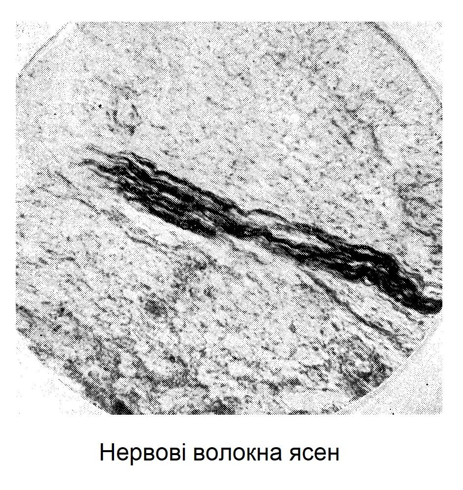Нервові волокна ясень