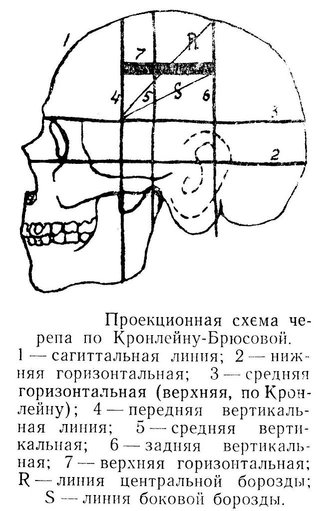 Проекционная схема черепа по Кронлейну-Брюсовой