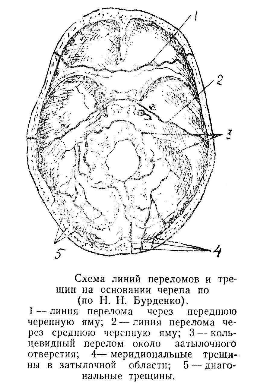 Схема линий переломов и трещин на основании черепа по Н.Н. Бурденко