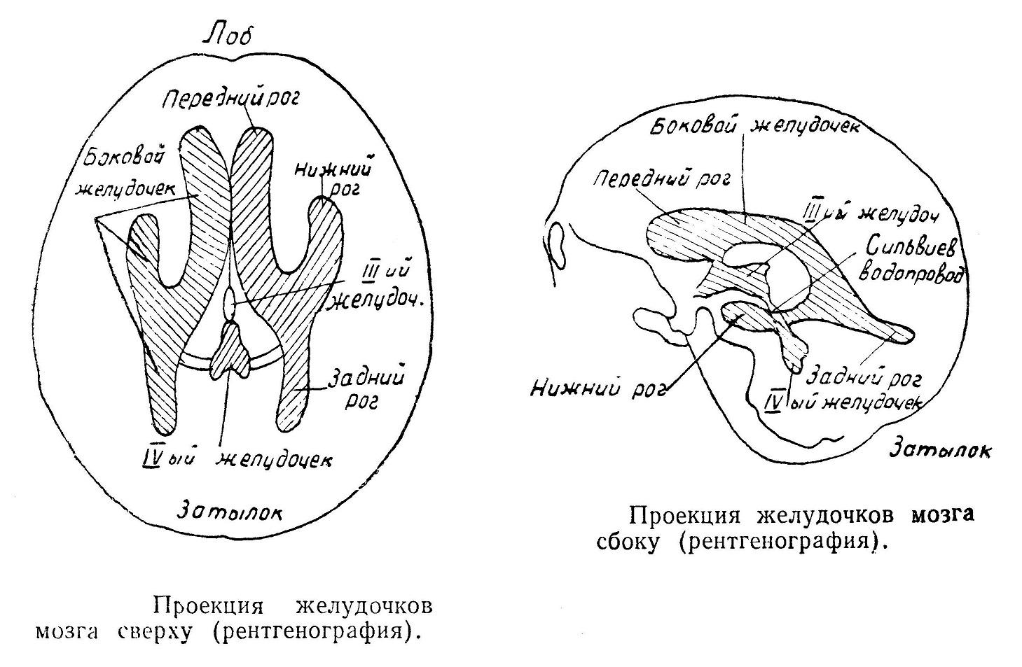 Проекция желудочков мозга рентгенография
