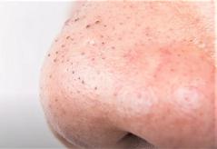 Чорні точки на носі