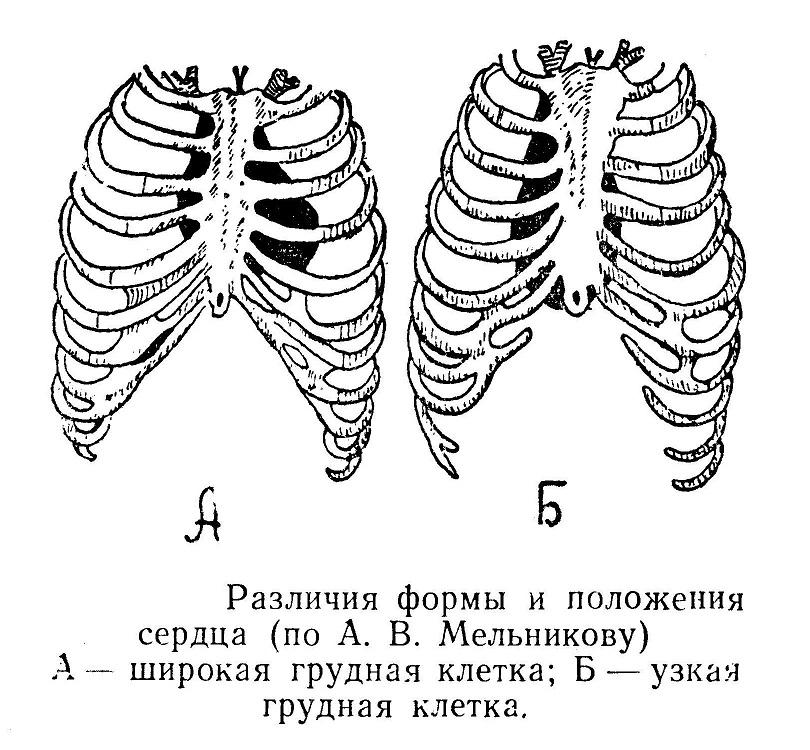 Различия формы и положения сердца