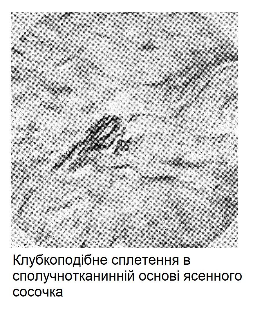 Клубкоподібне сплетення в сполучнотканинній основі ясенного сосочка