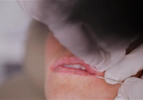 Збільшення губ або ін'єкції в губи