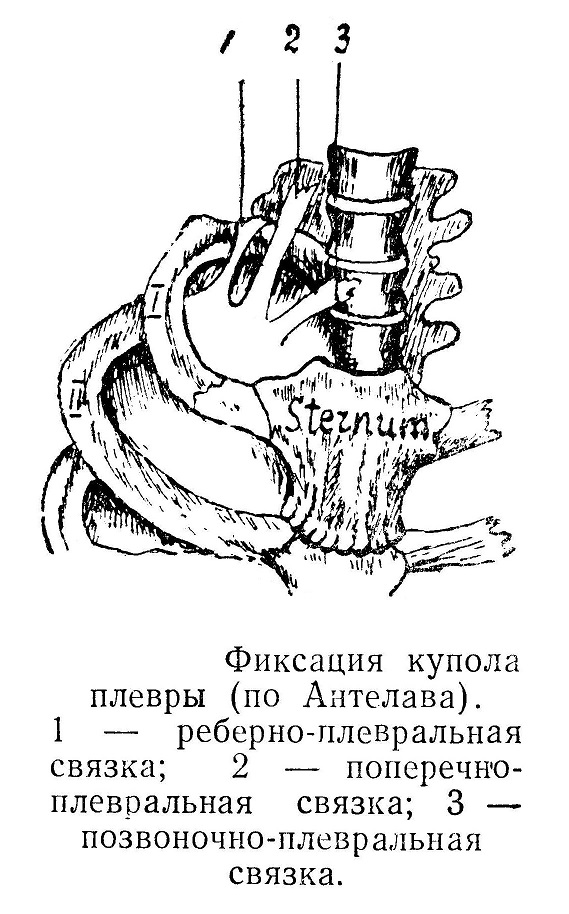 Фиксация купола плевры (по Антелава)