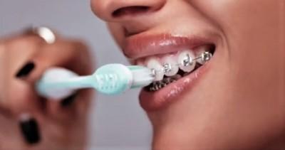 Найпопулярніші ортодонтни апарати - брекети (зубні гачки).
