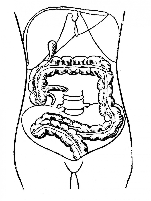вершина огромной петли colon sigmoideum может лежать в fossa iliaca dex