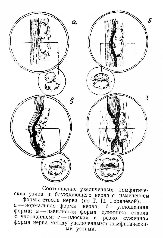 Соотношение увеличенных лимфатических узлов и блуждающего нерва