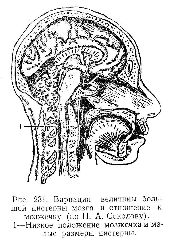 Вариации величины большой цистерны мозга и отношение к мозжечку