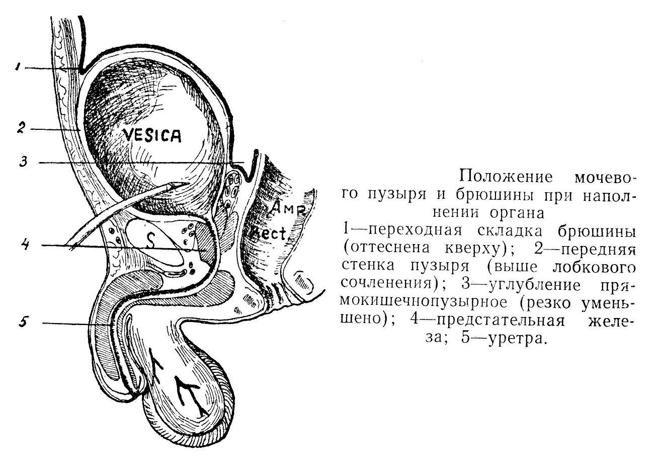 Положение мочевого пузыря и брюшины при наполнении органа