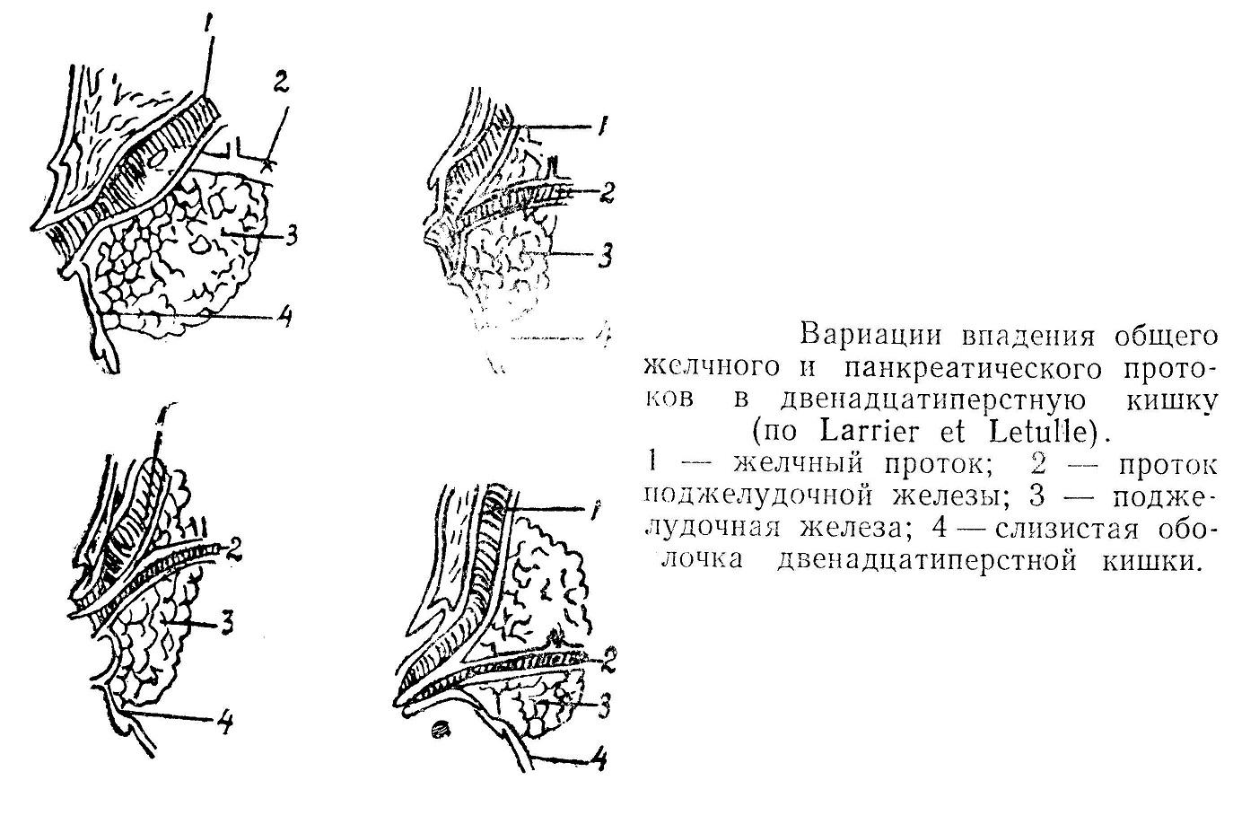 Вариации впадения общего желчного и панкреатического протоков в двенадцатиперстную кишку (по barrier et Letulle).