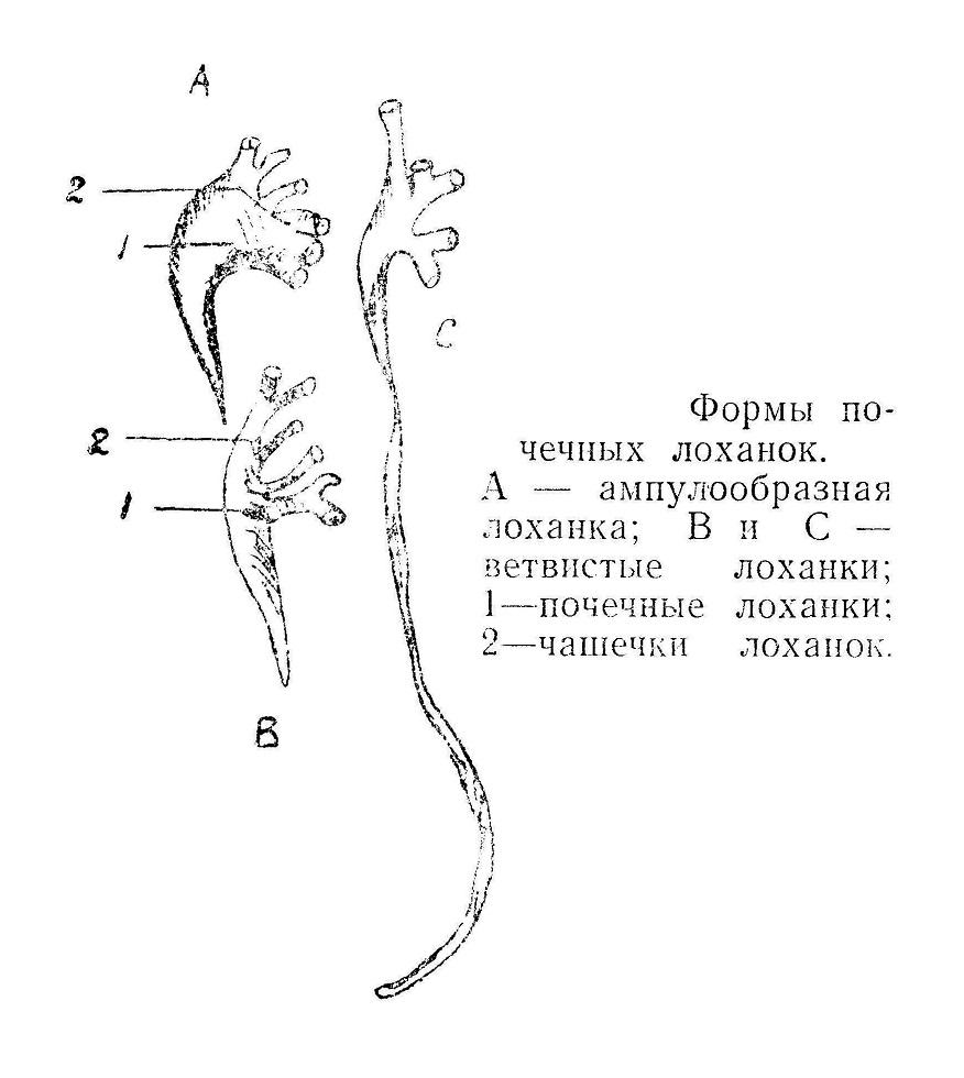 Формы почечных лоханок