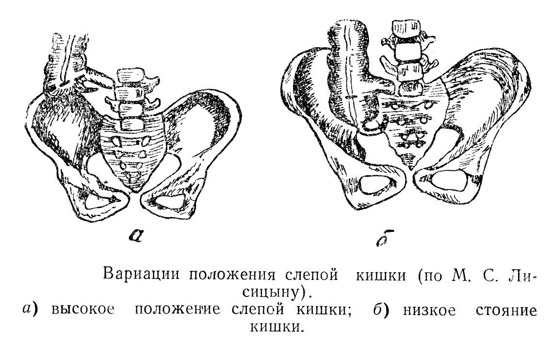 Вариации положения слепой кишки (по М. С. Лисицыну)