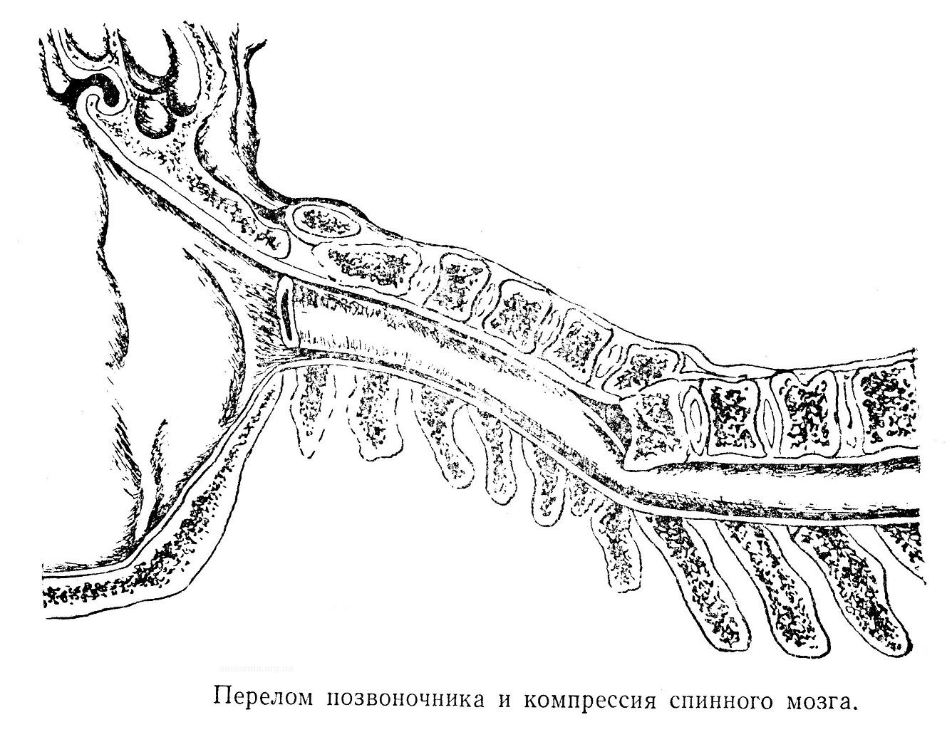 Перелом позвоночника и компрессия спинного мозга.