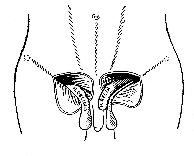 по рассечении куперовской фасции и кремастера встречают увеличенный семенной канатик