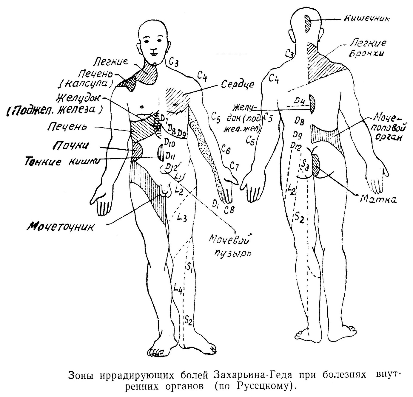 Боли «иррадирующие», Зоны иррадирующих болей