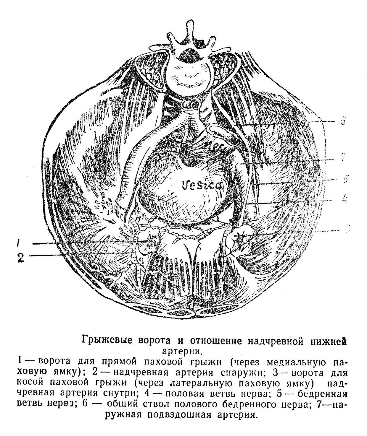рыжевые ворота и отношение надчревной нижней артерии.